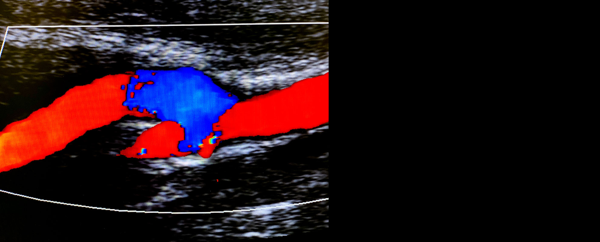 Precisão Diagnóstica Angiodoppler